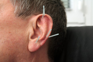 akupunktur, therapie